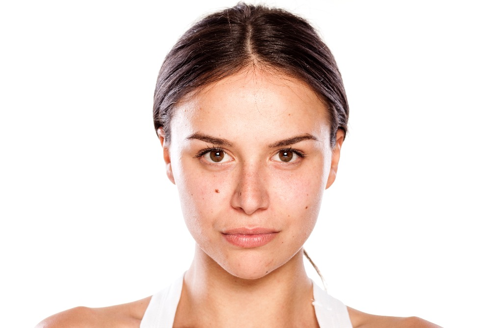 skin pigmentation removal Toronto - Scarborough Laser Surgery