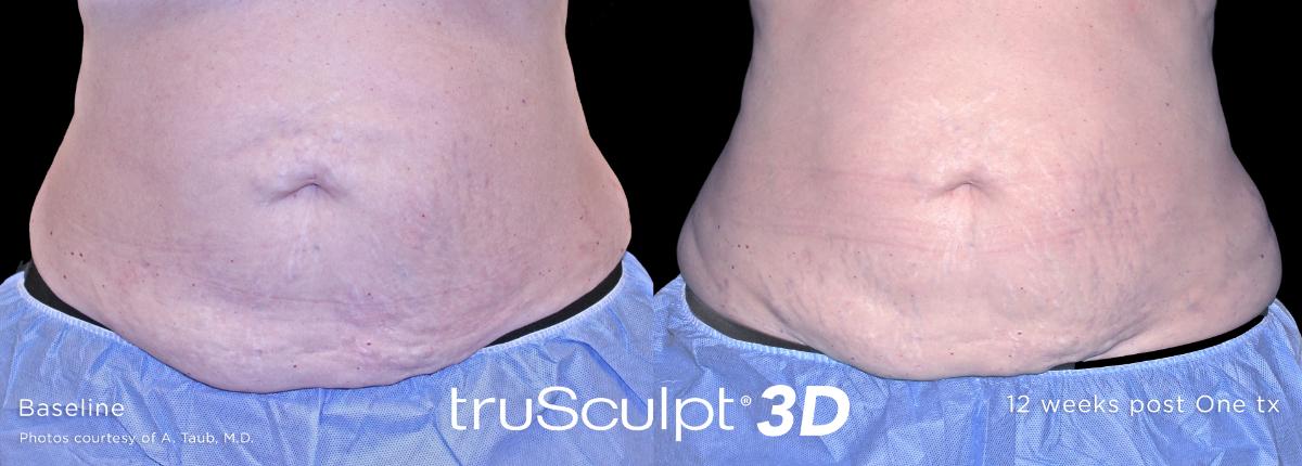 trusculpt 3d toronto - scarborough laser surgery